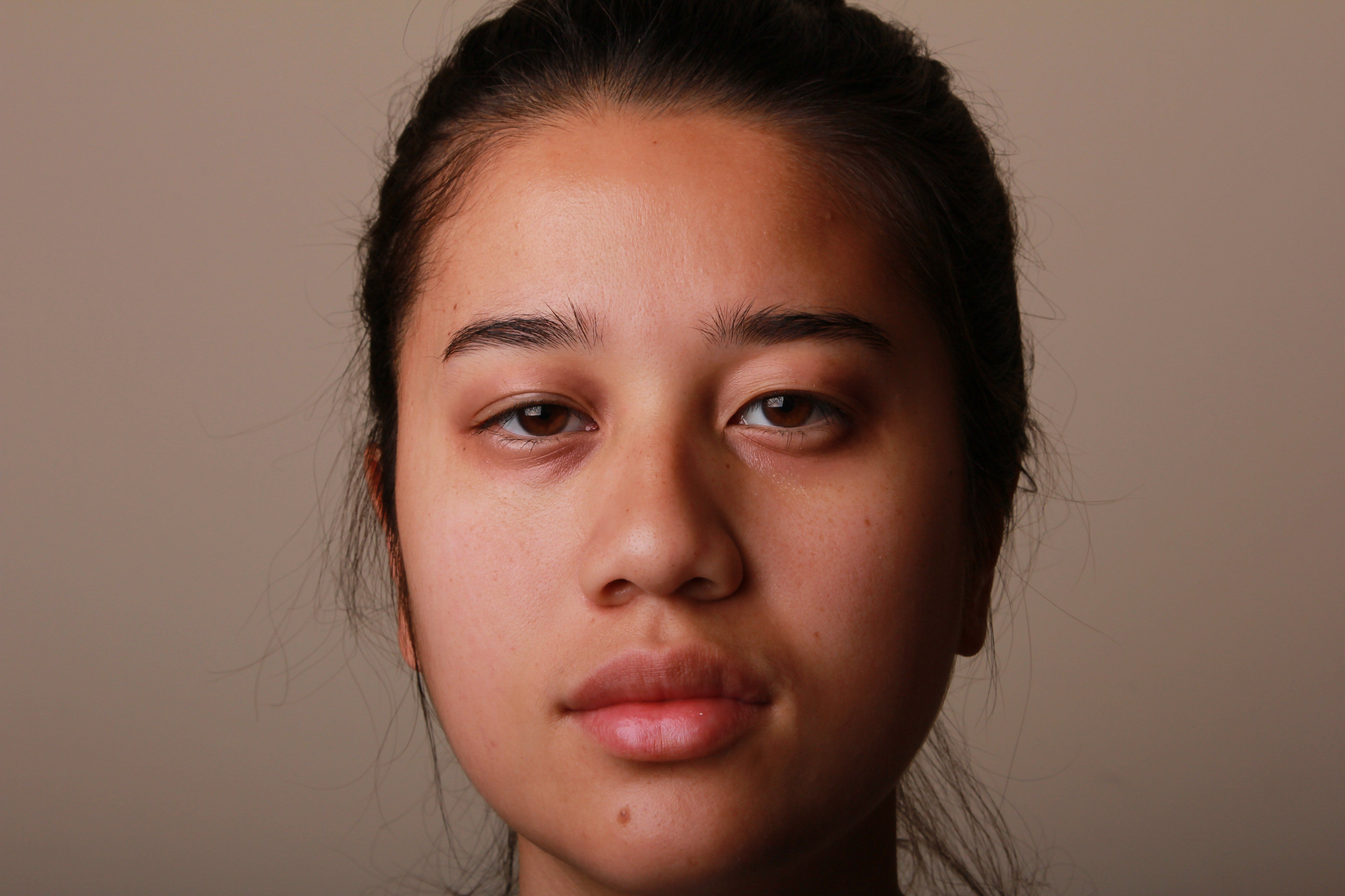 Absolute Z. reccomend Causes of facial puffiness