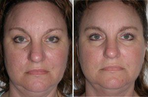 best of Mole removals Facial