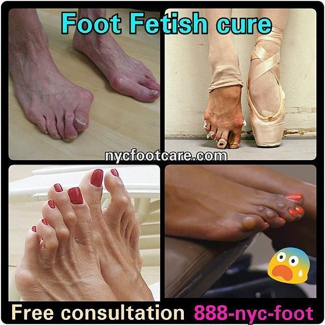 Ice reccomend Cure fetish foot