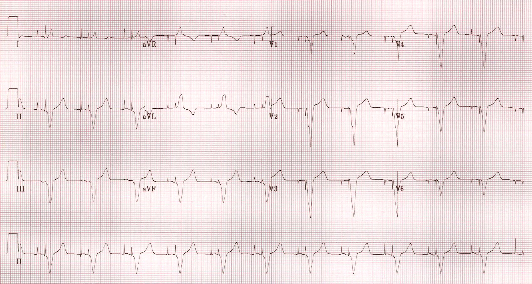 There's strip ecg atrial fibrillation cleared
