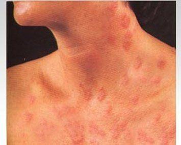 Ki-No-Wa reccomend Alergic to dildo