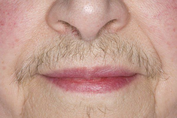 Firestruck reccomend Excess facial hair menopause