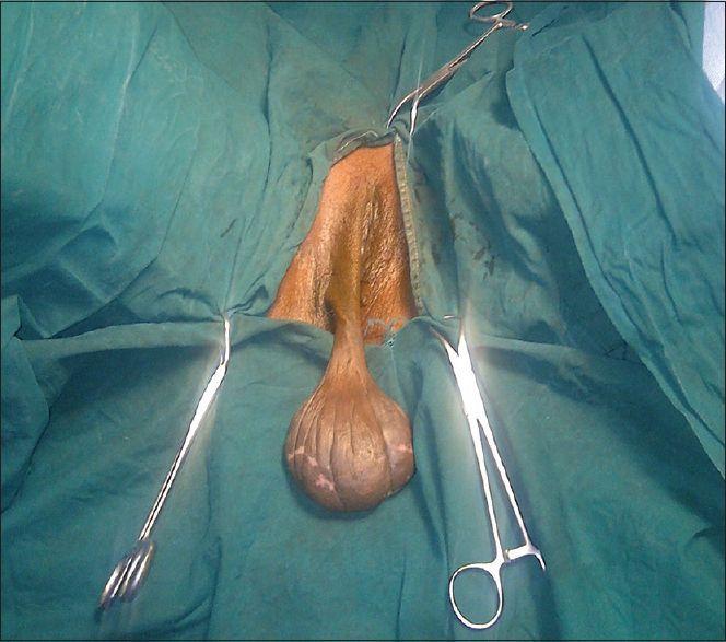 Large pic vulva