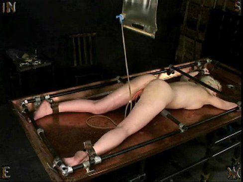 Curing seton anal fistula