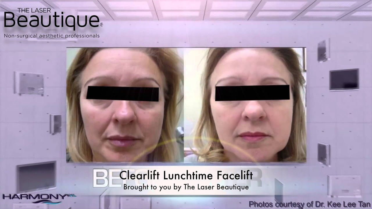 best of Liquid facial Lunchtime