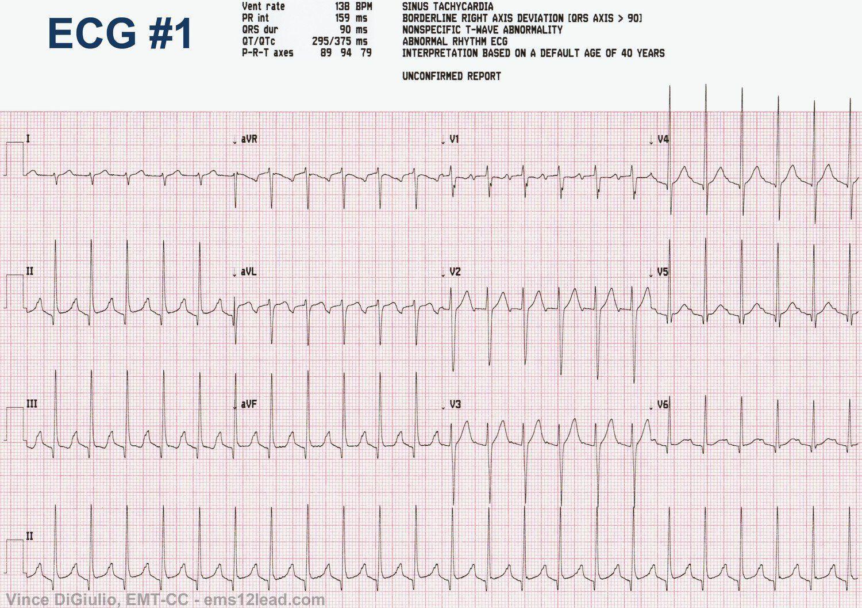 That fibrillation ecg strip atrial sorry
