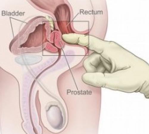 Male g spot prostate orgasm
