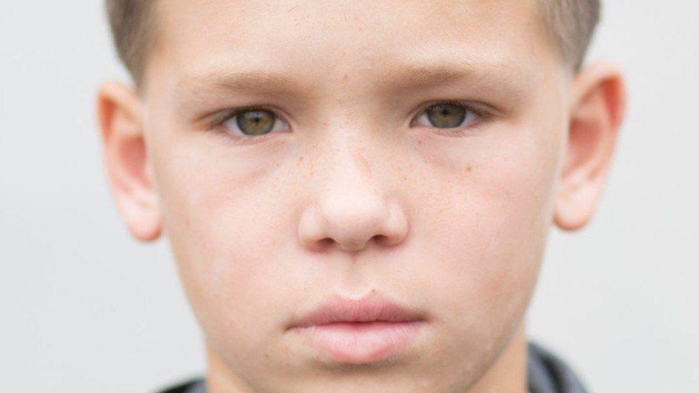 Facial seborretic dermatitus