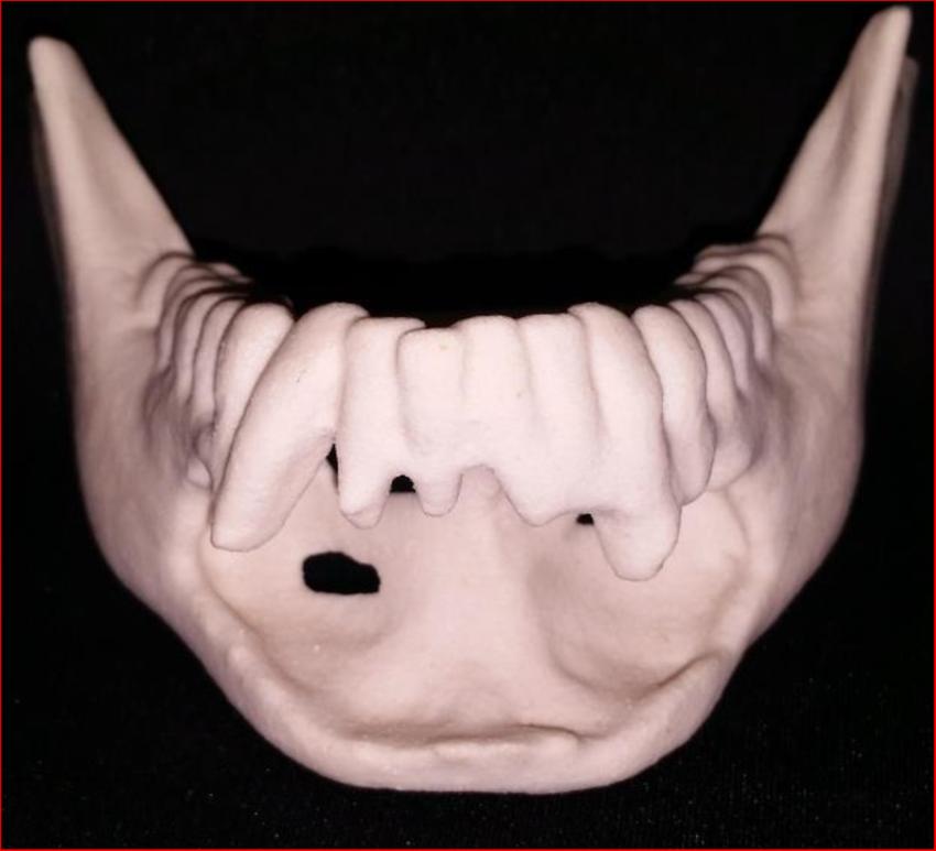 Maxilo facial unit