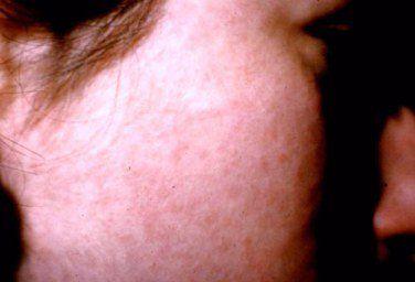 Woman with facial rash