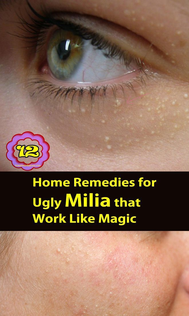best of Treatment Milia and self facial and