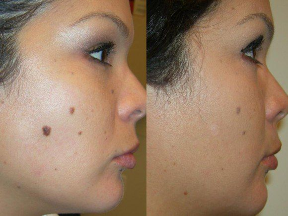 Facial mole removals