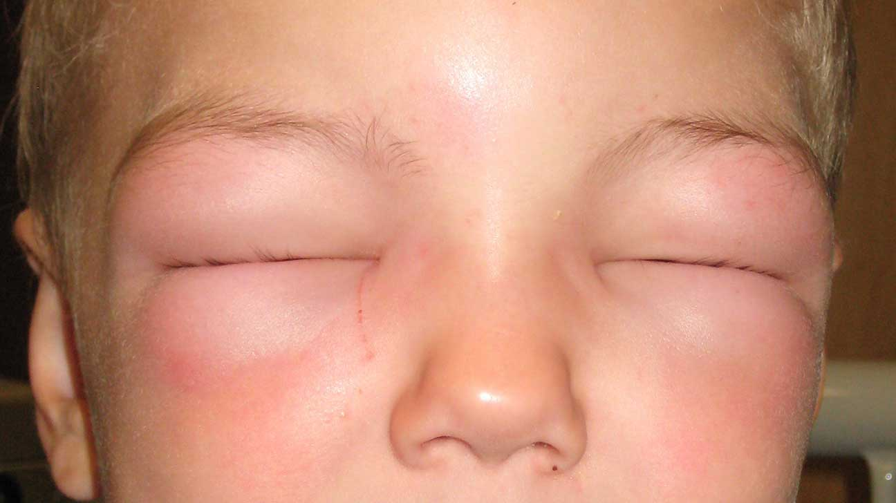 best of Facial puffiness of Causes