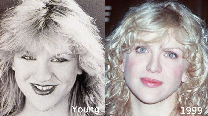 Courtney love had boob job