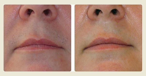 The E. reccomend Excess facial hair menopause