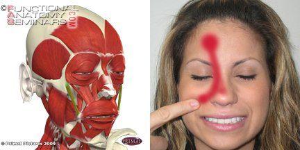 Facial pain zygo