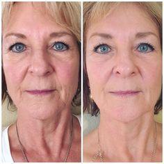 best of Spas connecticut Facial skin tightening in