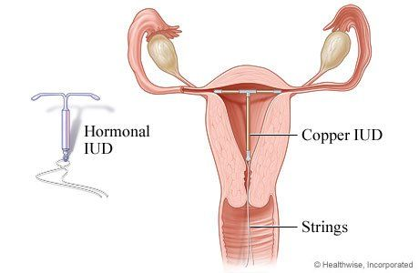 Vinegar reccomend Iud multiple sex partners
