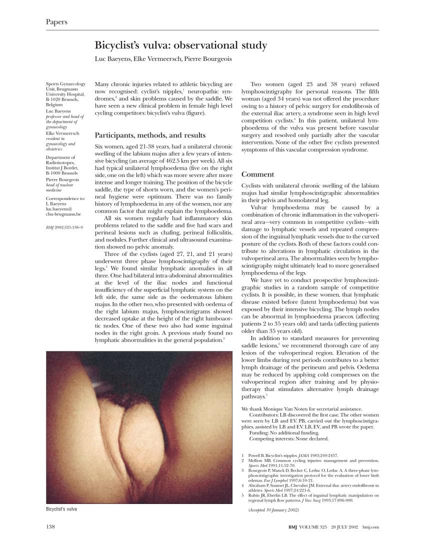 Platoon reccomend Large pic vulva