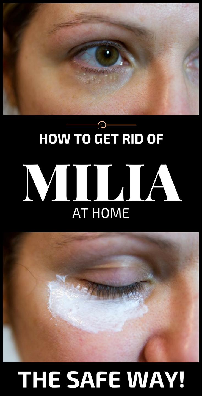 Milan reccomend Milia and self treatment and facial
