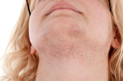 Frauen mit Gesichtsbehaarung nackt #8